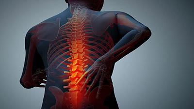 Backs Rehab®